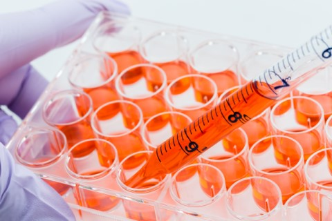 An image of a scientist inserting orange liquid into a series of test tubes suing a pipette.